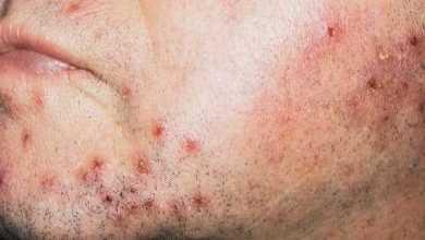التهاب بصيلة الشعرة Folliculitis