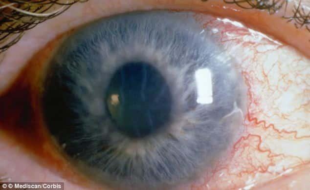 الجلوكوما - المياه الزرقاء Glaucoma - Blue Water