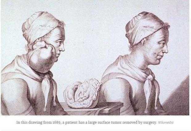 تاريخ السرطان History Of Cancer