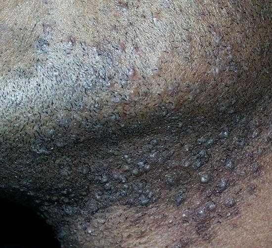 التهابات الدقن بعد الحلاقه Pseudofolliculitis Barbae