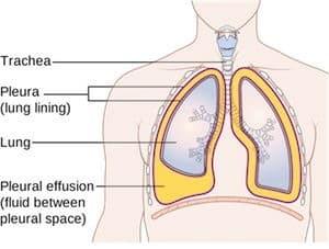 مرض بورنولم Bornholm disease