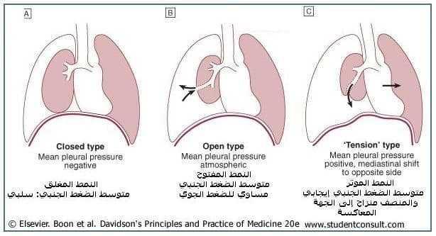 استرواح الصدر Pneumothorax 1