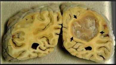 السكتة الدماغية Brain Stroke