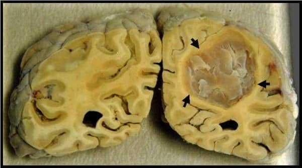 جزء من النسيج الدماغي المحتشي (المتموت) - السكتة الدماغية Brain Stroke