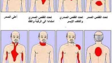 الأماكن المختلفة لألم الذبحة الصدرية Angina Pectoris