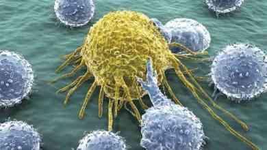 الصدفة تقود الباحثين لاكتشاف أجسام مضادة لسرطان الدماغ