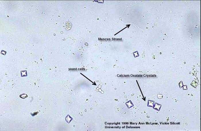 الفحص الميكروسكوبي