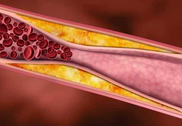 تحليل الدهون - Lipid profile