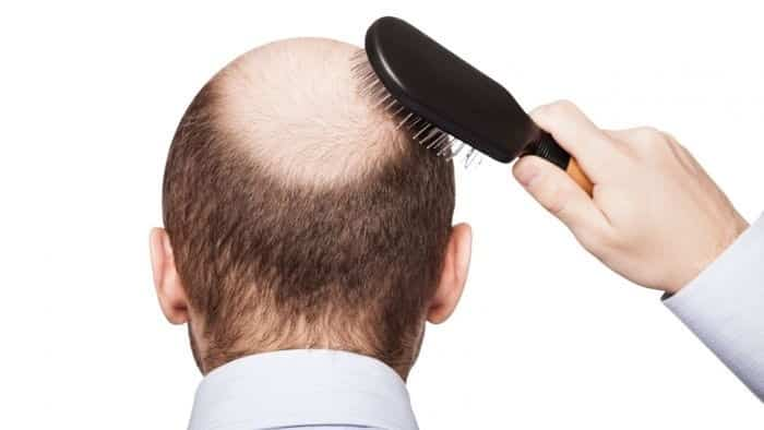 في خطوة قد تقضي على الصلع نهائيا..اكتشاف البروتين المسئول عن نمو الشعر