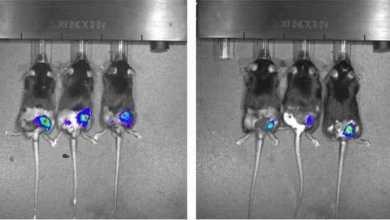 دراسة تمهد الطريق لمنع حدوث الانتكاسات بعد العلاج الإشعاعي للسرطان