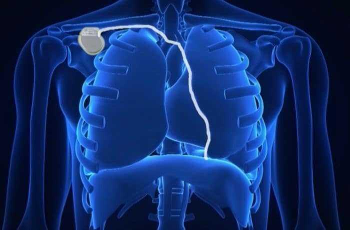 الغذاء والدواء توافق على جهاز جديد لعلاج انقطاع النفس النومي sleep apnea