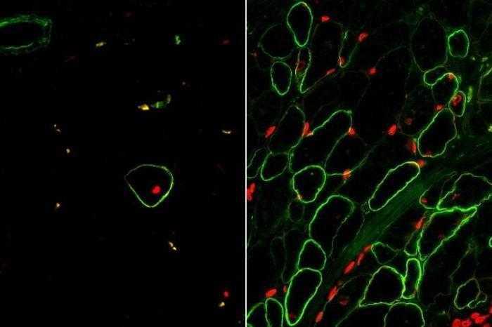 علماء يتمكنون من تخليق العضلات الهيكلية معمليا باستخدام الخلايا الجذعية
