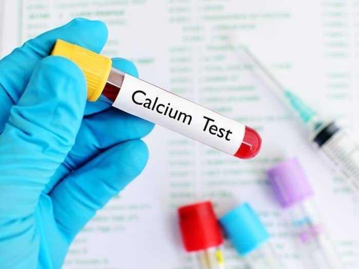 تحليل الكالسيوم (Ca) في الدم