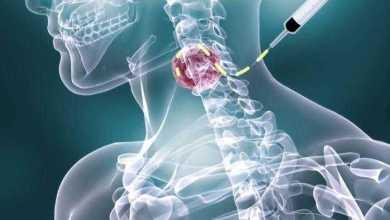 مذهل للقضاء على أنواع عديدة من السرطان يدخل مرحلة التجارب السريرية على البشر