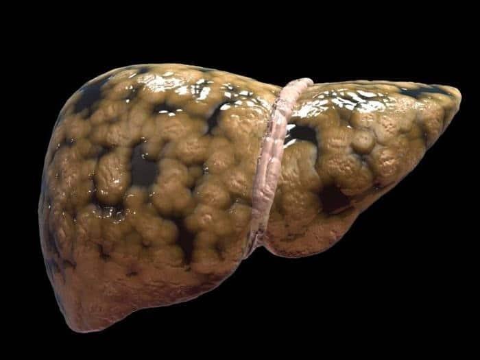 تكيس المبايض يضاعف خطر الإصابة بأمراض الكبد