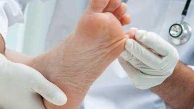 ارشادات لمريض السكر لتجنب الأصابة ب (القدم السكري )