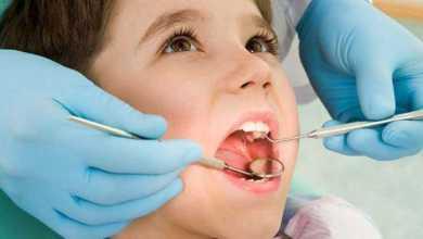 علماء يستخدمون الخلايا الجذعية للأسنان اللبنية لإصلاح تلف الأسنان الدائمة