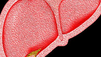 كيف يمكن الشفاء من الكبد الدهني