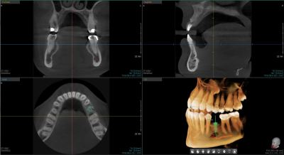 Recently, Dr. Altenbach has introduced a Vatech PaX-i3D™, a dual cone beam (CBCT) and panoramic x-ray machine. This incredible technology allows Dr. Altenbach to more accurately diagnose treatment, while reducing unnecessary x-ray exposure through more precise fields of view and low-radiation pulse technology.