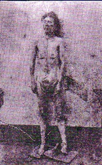 Eddowes morgue photo