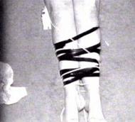 BTK (Bind, Torture, Kill victim's bound legs