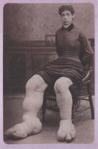 Fannie Milles - the Ohio Big Foot Girl