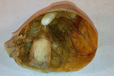 Teratoma tumor containing fully formed teeth, hair, and bone