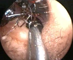 Endoscopic camera shows doctors removing ants from Shreya Darji's ear