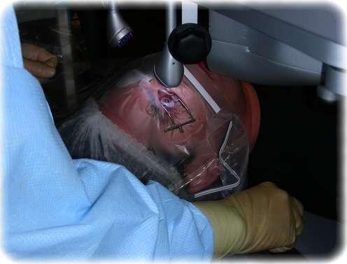 Meine Lasik-Operation