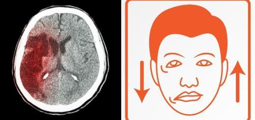 mozkova mrtvice-priznaky