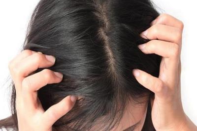 وصفات الطبيعية للتخلص من حبوب فروة الرأس