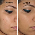 Acne breaks out a day to that party? Use these makeup tips to tackle it