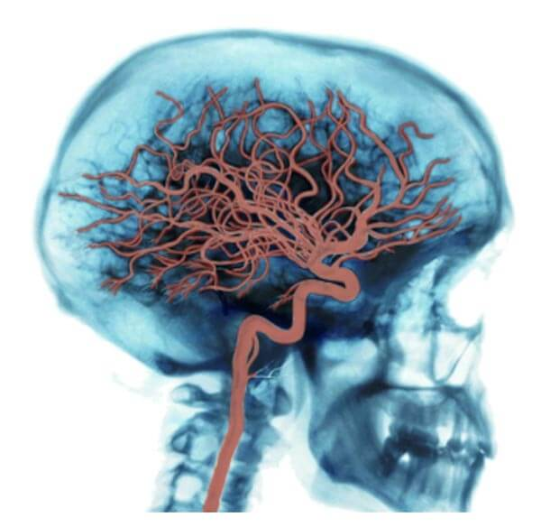 Brain Arteries