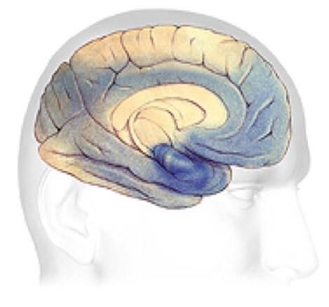 Alzheimer's Brain Progression
