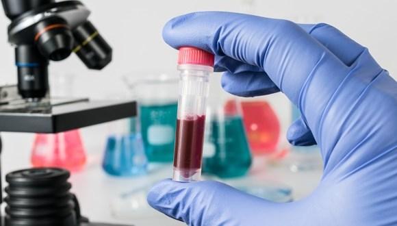 اختبار للدم يمكن أن يكشف عن أعراض ألزهايمر المبكرة