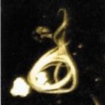 Un mètodo de anticuerpos distingue las isoformas tau del Alzheimer