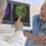 Confirman la relación entre la inflamación y el Alzheimer