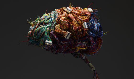 Cerebro de alambre. / GETTY