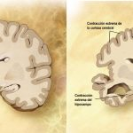 Un diagnóstico erróneo o mal manejado - cerebro