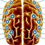 La estimulación cerebral profunda podría ayudar a curar enfermedades como el alzheimer o la depresión GYI