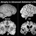 10 Datos sobre la Demencia según la OMS (y que todos deberíamos conocer)