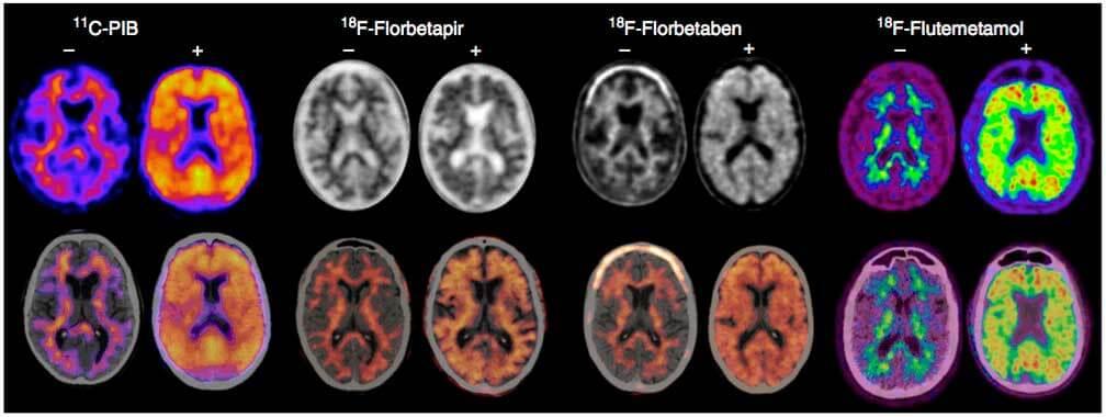 Figura2. ImágenesPET(arriba)yfusiónPET/TC(abajo)negativas(-)ypositivas(+)paralapresenciadeproteínabeta-amiloidecorticalrealizadascondiferentesradiofármacos. De izquierda a derecha: 11C-PIB (por cortesía del Hospital Universitario Marqués de Valdecilla, Santander); 18F-florbetapir (por cortesía de la Clínica Universidad de Navarra, Pamplona); 18 F-florbetaben (por cortesía de la Clínica Universidad de Navarra, Pamplona); 18 F-flutemetamol (por cortesía del Hospital de la Santa Creu y Sant Pau, Barcelona).