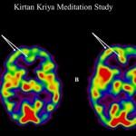 Yoga y Meditación frente a Olvidos iniciales.