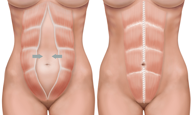 Will Physical Therapy Really Work For Diastasis Recti Experiential Grace