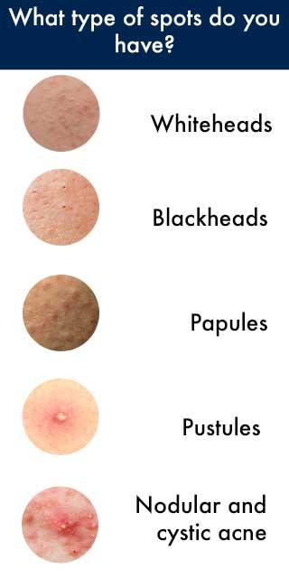 Types of spots