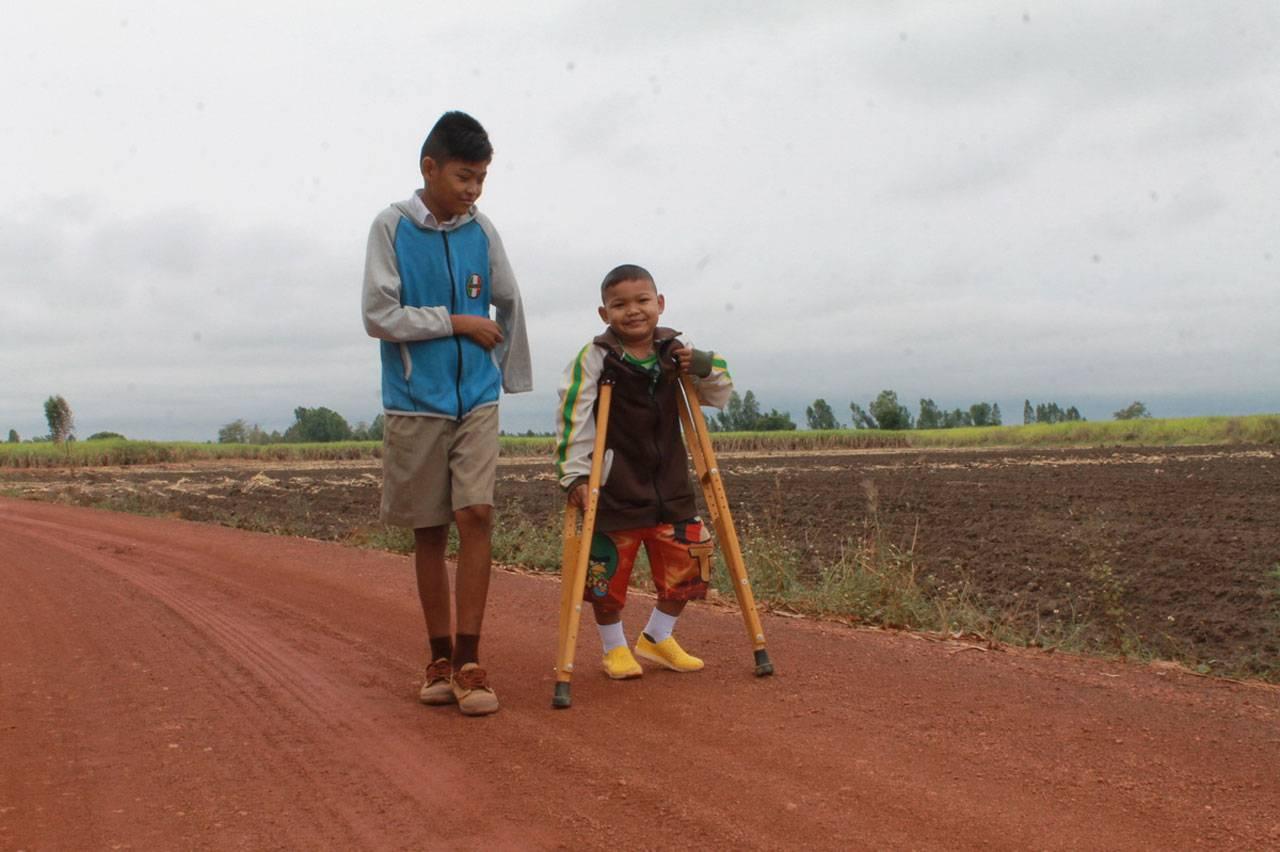 พี่น้องถูกรถชน-แขนขาด-ขาหัก