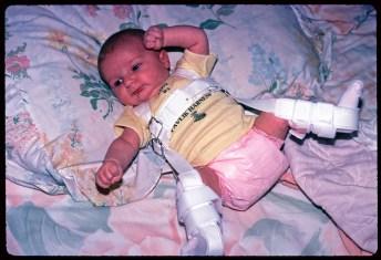 โรคข้อสะโพกหลุดในเด็ก