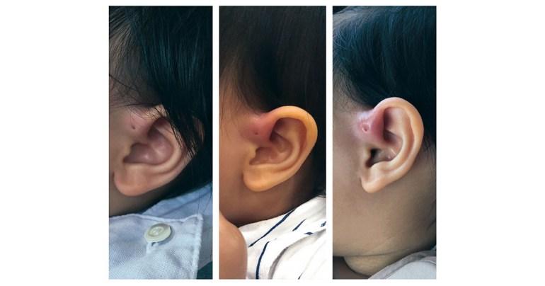รูข้างหู ear pit