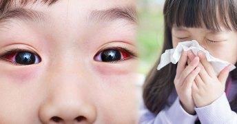 เช็กสัญญาณ อาการแพ้ฝุ่น PM 2.5