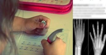 อย่าเร่งลูกเขียนหนังสือ แนะกิจกรรมพัฒนากล้ามเนื้อมัดใหญ่ เล็ก